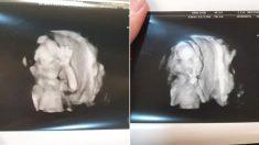 초음파 찍는 엄마아빠한테 인사 건네려 손 흔들며 '브이'한 아기
