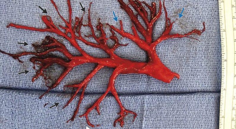 심부전증 환자가 기침하다 토해낸 12cm '혈관 모양' 핏덩어리